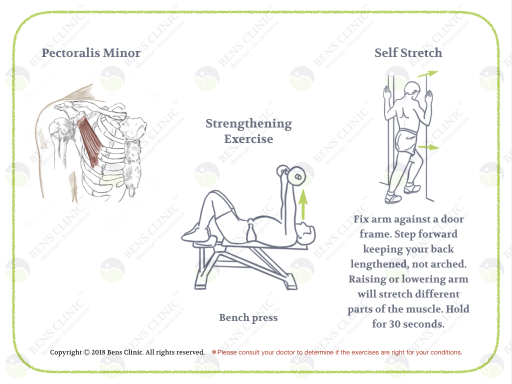 Massage Therapy/Acupuncture/Tui Na/Stretch and Exercise